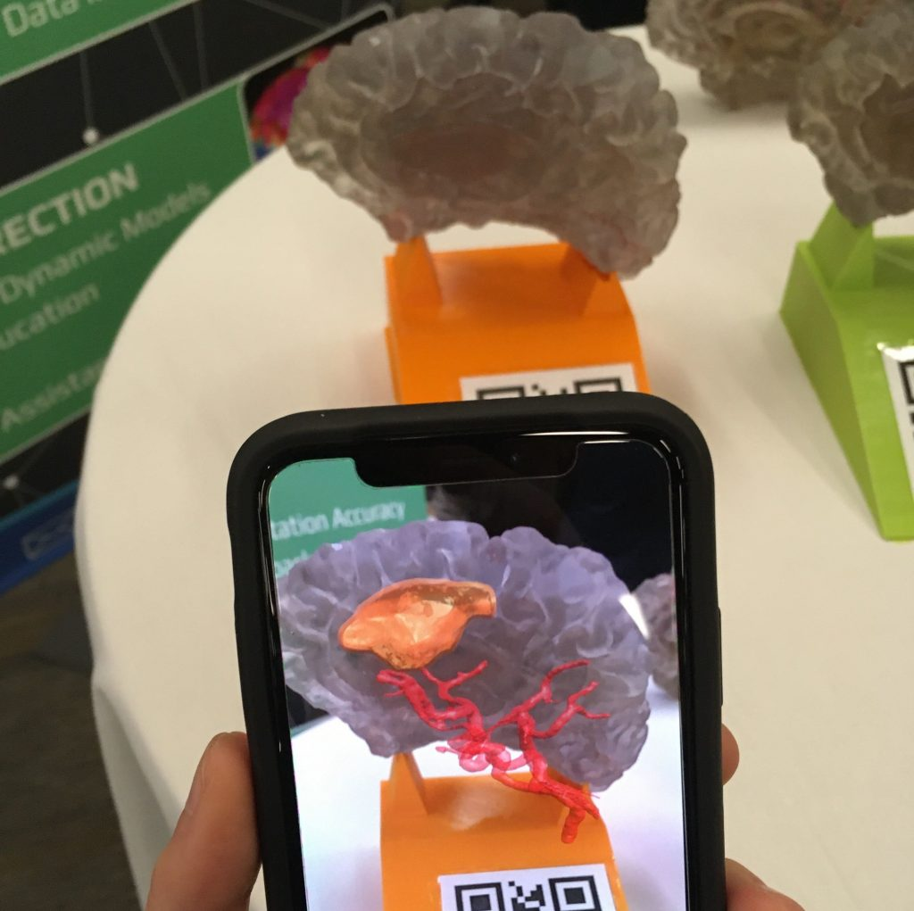 AR Brain model app in use